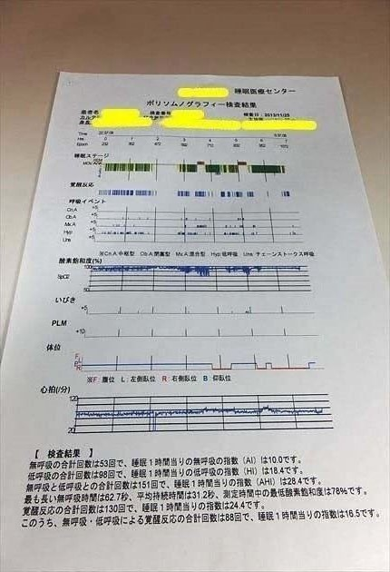 PSG検査結果の用紙